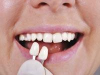 Ästhetischer und komfortabler Zahnersatz